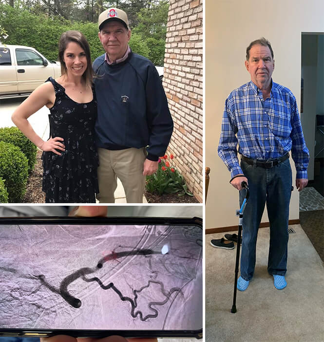 Picture of Stefanie and her dad, her dad after stroke and a medical scan