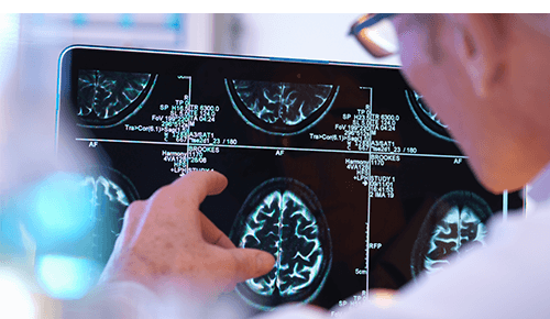 Doctor reviewing a brain scan